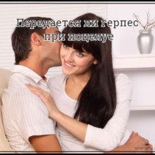 Герпес передается через поцелуй?