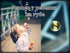 Чем лечить герпес на губе у ребенка? — советы родителям