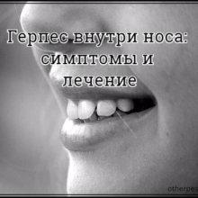 Герпес внутри носа: симптомы и лечение