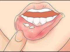Герпес во рту: причины, симптомы и лечение