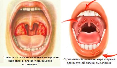 Gerpesnaya-angina-foto
